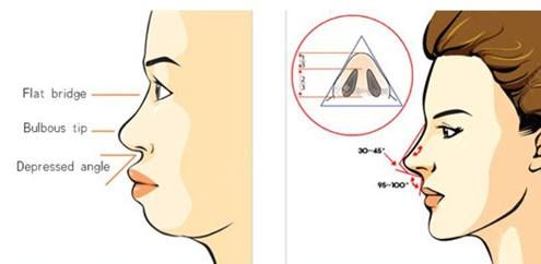 Ưu điểm phương pháp nâng mũi bọc sụn tại Thẩm mỹ viện Trương Kiều Xuân