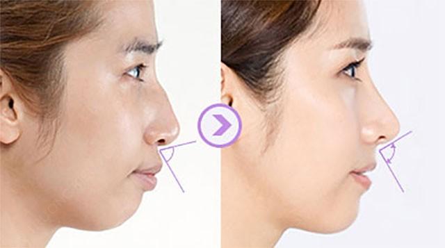 """""""Đối tượng áp dụng phẫu thuật sửa mũi"""